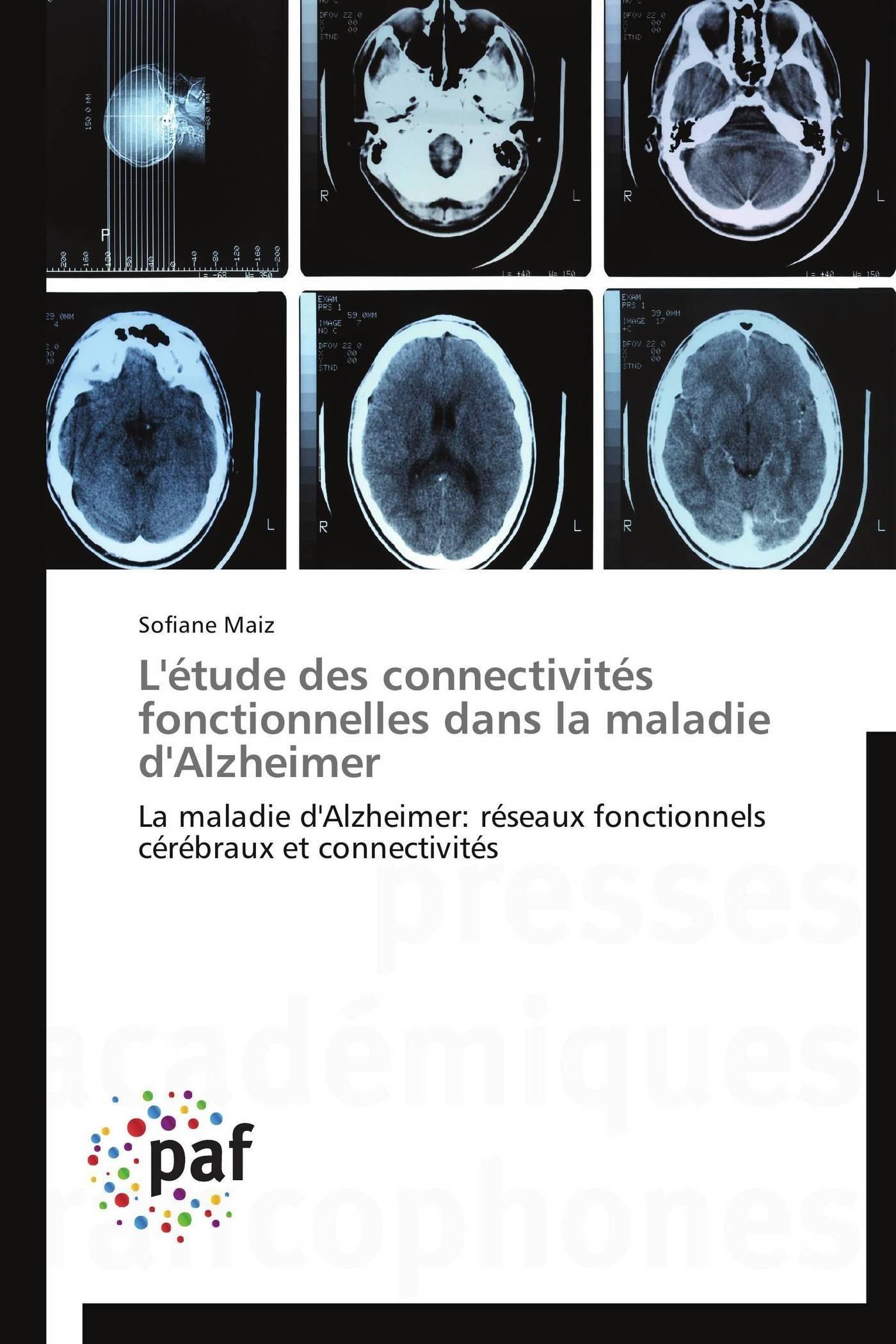L'ETUDE DES CONNECTIVITES FONCTIONNELLES DANS LA MALADIE D'ALZHEIMER
