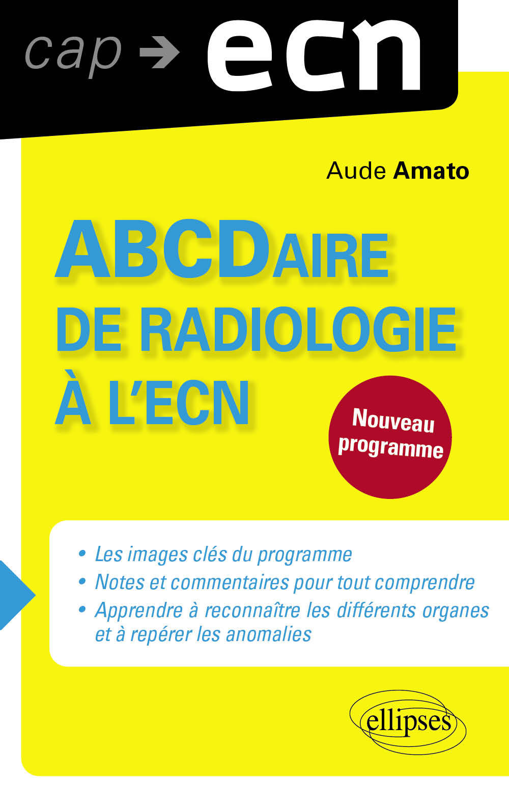 ABCDAIRE DE RADIOLOGIE A L`ECN