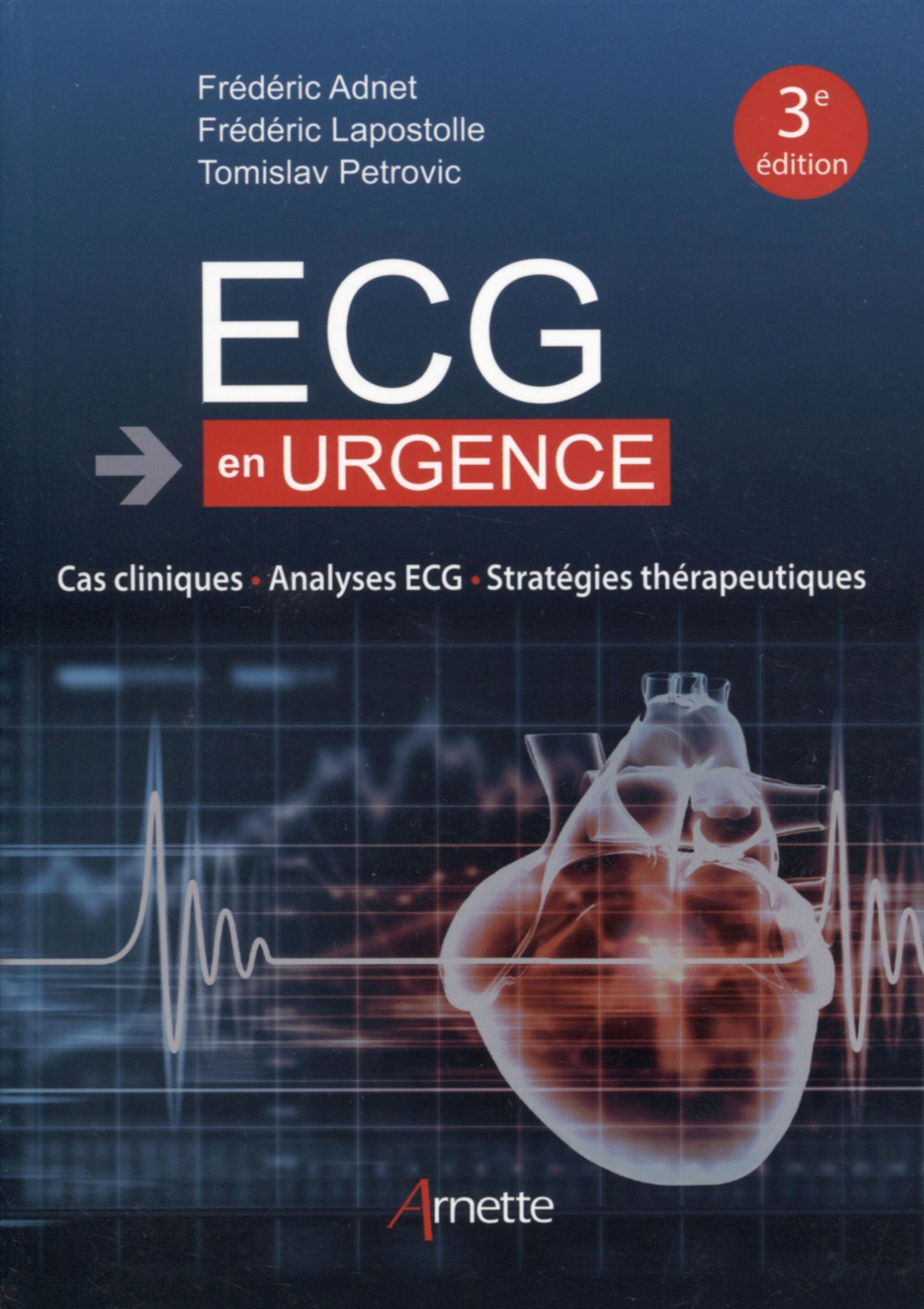 ECG EN URGENCE - CAS CLINIQUES - ANALYSES ECG - STRATEGIES THERAPEUTIQUES
