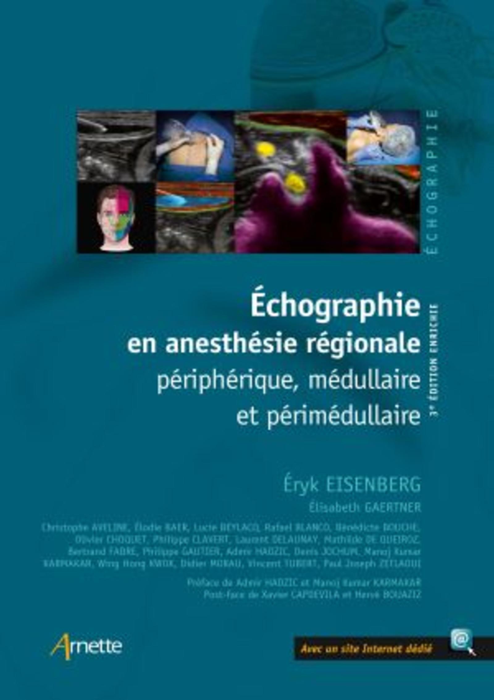 ECHOGRAPHIE EN ANESTHESIE REGIONALE - PERIPHERIQUE, MEDULLAIRE ET PERIMEDULLAIRE