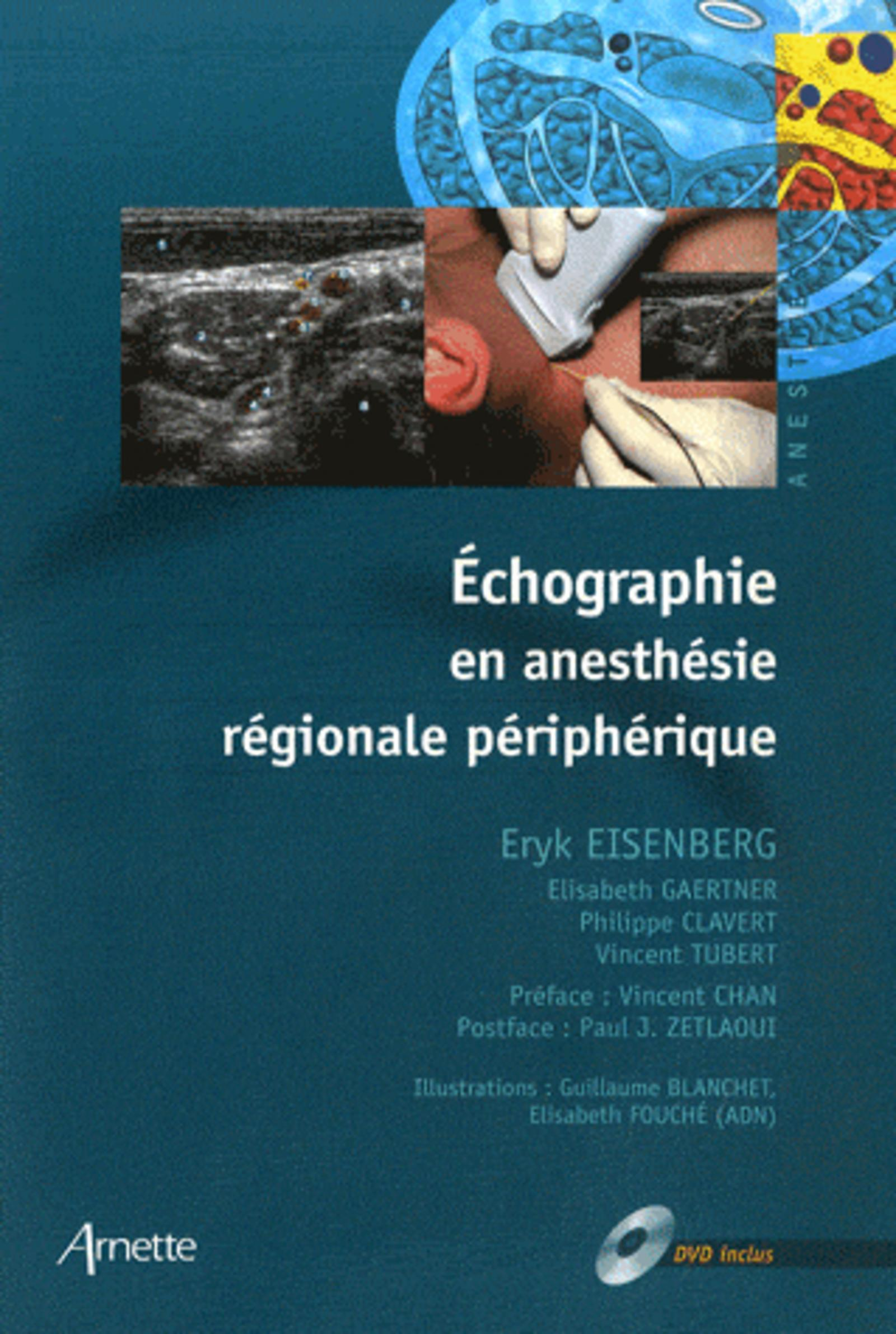 ECHOGRAPHIE EN ANESTHESIE REGIONALE + DVD INCLUS