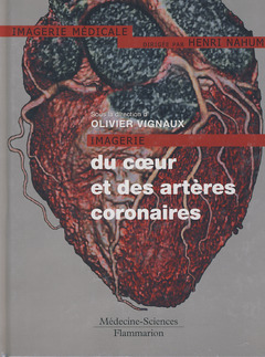 IMAGERIE DU COEUR ET DES ARTERES CORONAIRES